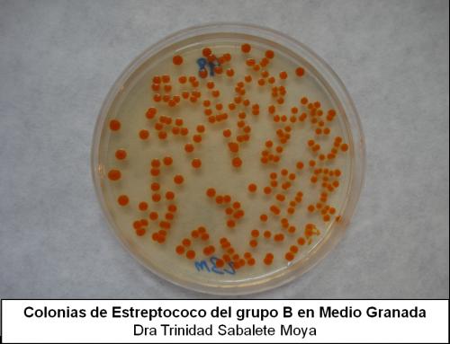 Estreptococo B positivo